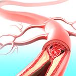 cholesterinspiegel